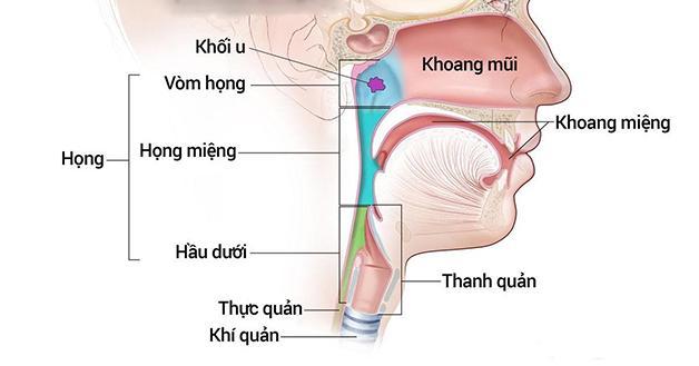 Điều trị ung thư vòm họng giai đoạn đầu bằng hóa trị