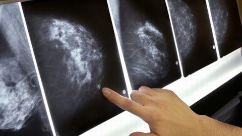 Điều trị ung thư vú di căn