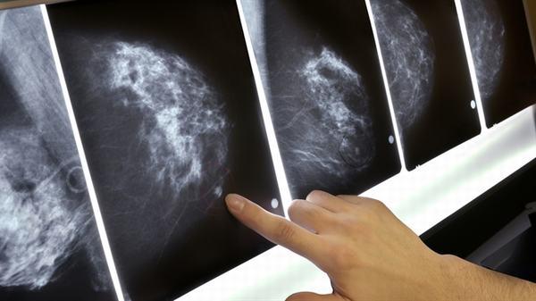 Tỷ lệ sống của người bệnh ung thư vú di căn phụ thuộc vào nhiều yếu tố