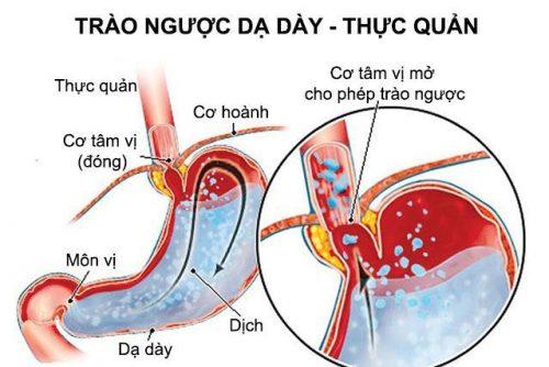 Một số bài thuốc chữa trào ngược dạ dày thực quản bằng Đông y thường được áp dụng theo các nguyên nhân gây bệnh