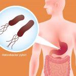 Dương tính với vi khuẩn Hp trong dạ dày khi nào cần điều trị?