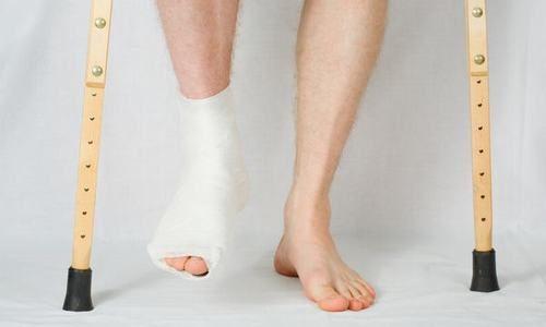 Gãy chân bao lâu đi lại được là thắc mắc của rất nhiều người