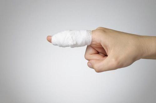 Gãy ngón tay là tình trạng xương ở ngón tay bị gãy hay vỡ ra ảnh hưởng đến chức năng cầm nắm của bàn tay