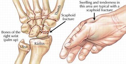 Gãy xương bàn tay dễ nhận biết