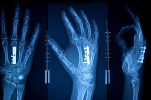 Chụp X quang giúp chẩn đoán xác định vị trí gãy xương và mức độ tổn thương