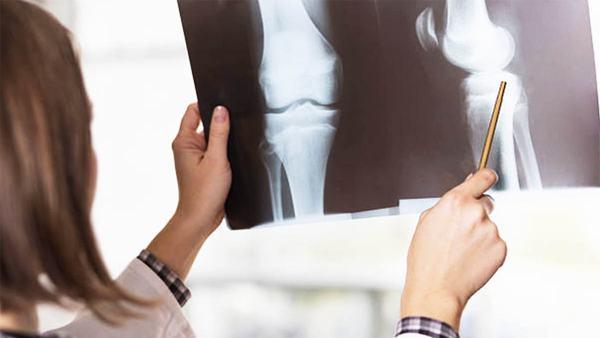 Thời gian phục hồi xương bánh chè sau gãy nhanh hay chậm phụ thuộc vào mức độ gãy, phương pháp điều trị...