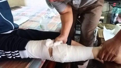 Gãy xương cẳng chân bao lâu thì tháo bột?