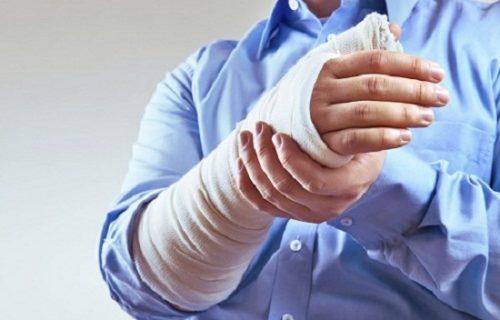 Dấu hiệu gãy xương cánh tay