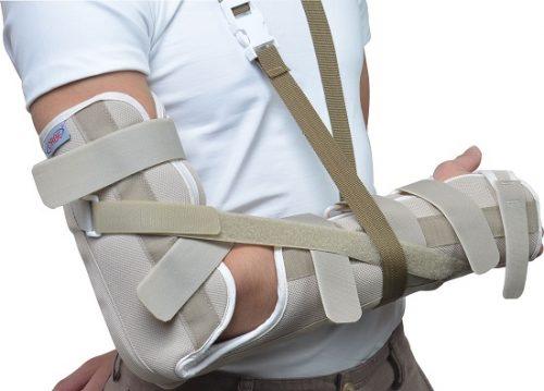 Cáchxử lý, điều trị khi bị gãy xương cánh tay