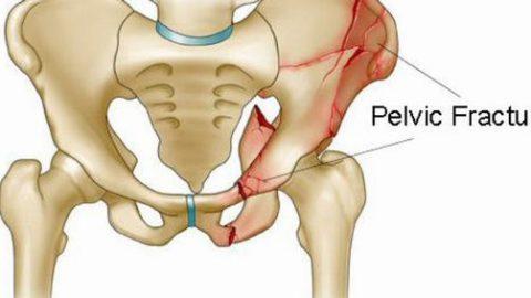 Gãy xương chậu bao lâu thì lành và cần lưu ý gì để nhanh hồi phục?