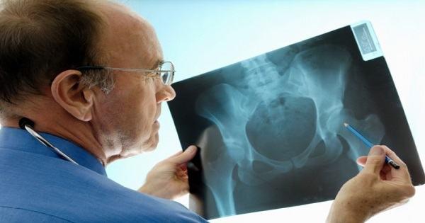 Gãy xương chậu bao lâu thì khỏi, có ảnh hưởng gì không? 2