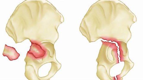 Gãy xương chậu có nguy hiểm không, ảnh hưởng thế nào?