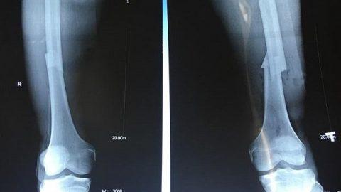 Gãy xương chày bao lâu thì lành? Phụ thuộc vào yếu tố nào?