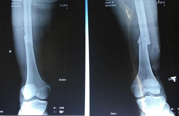 Thời gian phục hồi gãy xương chày phụ thuộc vào nhiều yếu tố