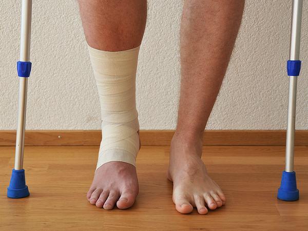 Người bệnh cần chú ý luyện tập sau gãy để nhanh hồi phục