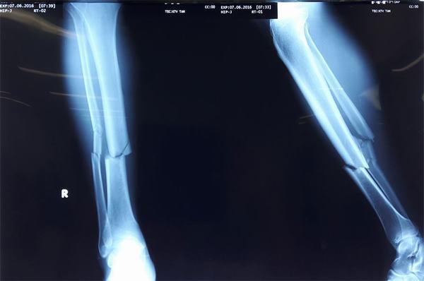 Gãy xương chày rất nguy hiểm nên cần được điều trị kịp thời và đúng cách
