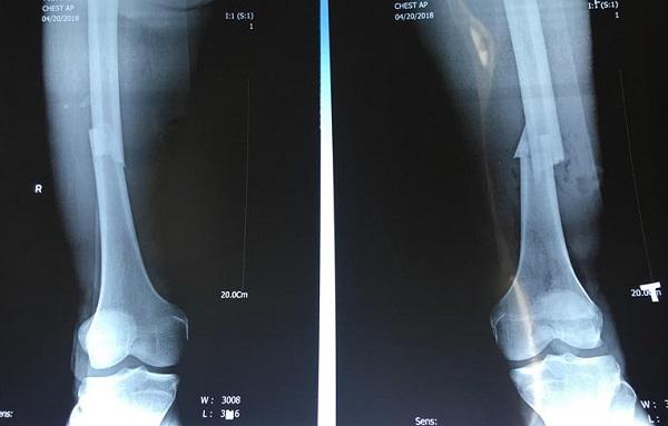 Gãy xương đùi có thể phát hiện qua chụp X-quang hoặc chụp CT
