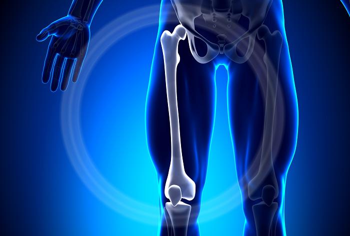 Gãy xương đùi: Triệu chứng nhận biết và cách điều trị