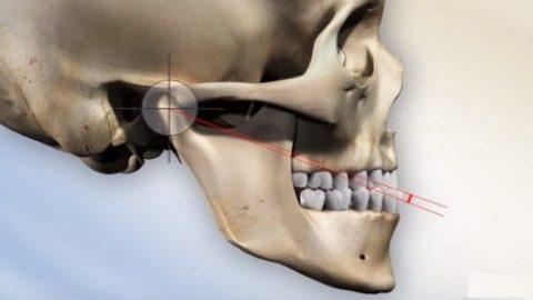 Gãy xương hàm bao lâu thì lành?