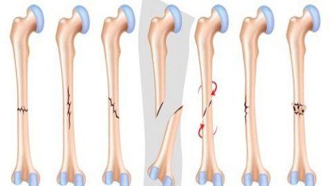 Gãy xương là gì? Biểu hiện và cách làm xương mau lành nhất