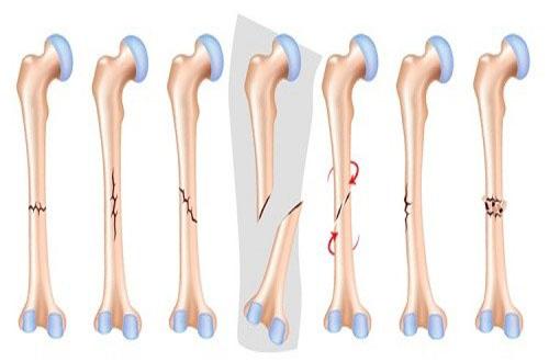 Gãy xương là gì?