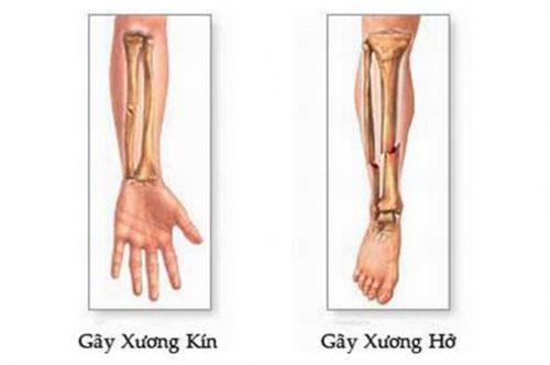 Biểu hiện của gãy xương