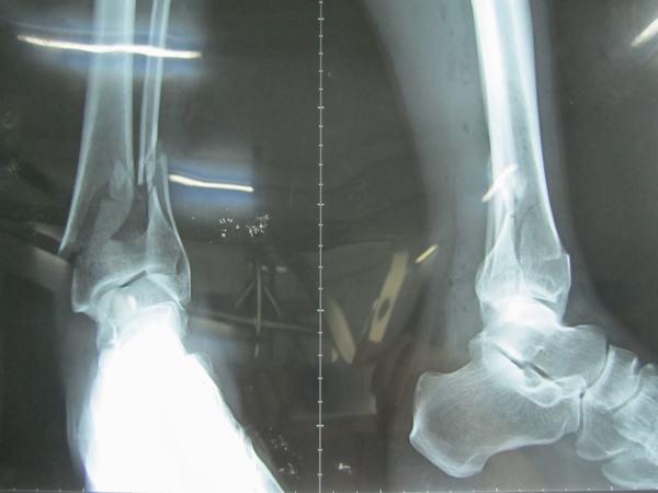 Gãy xương mác cẳng chân bao lâu thì lành