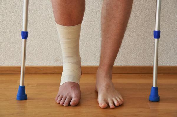Người bệnh cần luyện tập sau gãy xương để nhanh hồi phục