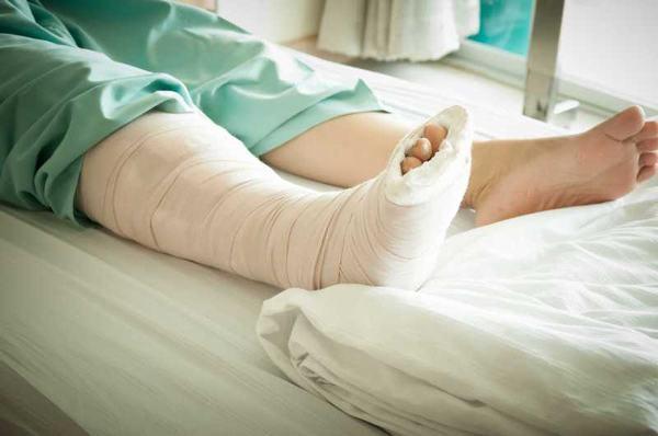 Bó bột thường được áp dụng khi gãy xương mác mức độ nhẹ