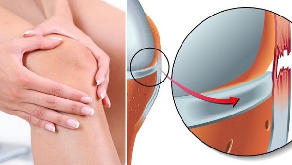 Khi vận động mạnh, đầu gối dễ bị chấn thương đặc biệt là đứt hoặc giãn dây chằng
