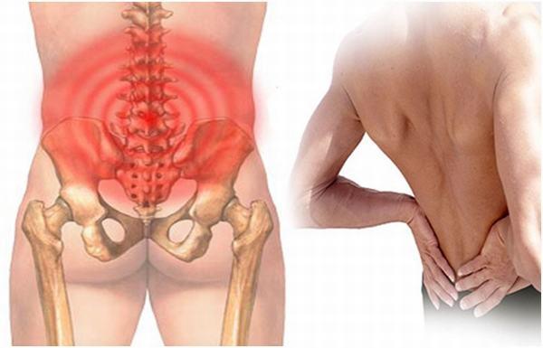 Chấn thương do tai nạn, làm việc quá sức có thể gây giãn dây chằng lưng