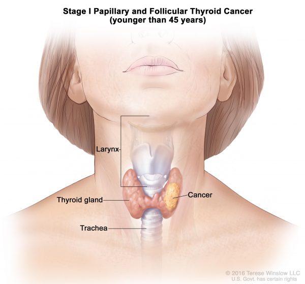 Nổi hạch cổ cũng có thể liên quan đến ung thư tuyến giáp