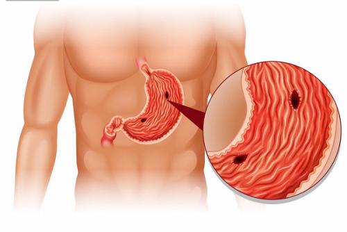 Thủng dạ dày là một trong những hậu quả của bệnh viêm loét dạ dày tá tràng