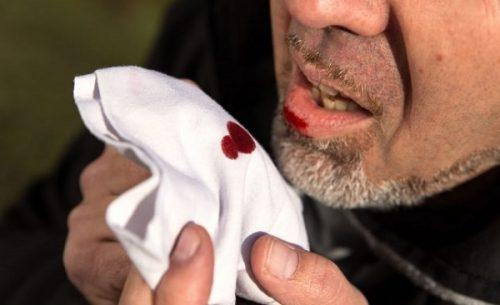 Nôn ra máu là một trong những triệu chứng điển hình của xuất huyết tiêu hóa.