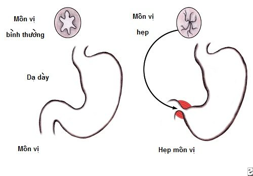 Phẫu thuật là phương án điều trị phổ biến với hẹp phì đại môn vị bẩm sinh.