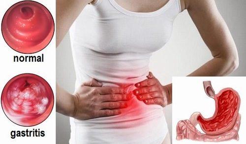 Khi thấy xuất hiện những triệu chứng nghi ngờ mắc bệnh lý ở dạ dày, người bệnh cần tiến hành nội soi để xác định bệnh