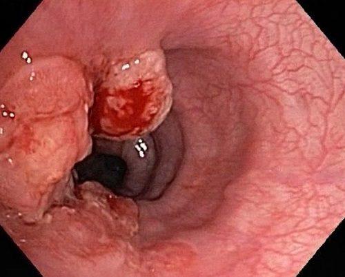 Hình ảnh nội soi dạ dày phát hiện ung thư dạ dày