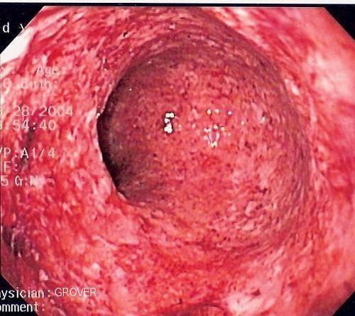 Nội soi đại tràng giúp phát hiện viêm loét đại tràng