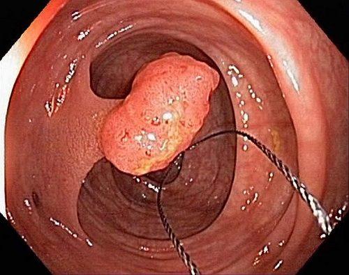 Qua nội soi đại tràng, bác sĩ có thể tiến hành sinh thiết u để xác định giai đoạn bệnh cụ thể.
