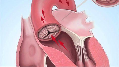 Hở van động mạch chủ 2/4 có chữa khỏi được không?