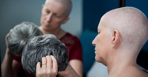 Sau hóa trị ung thư dạ dày, người bệnh có thể gặp một số tác dụng phụ như rụng tóc, thiếu máu, mệt mỏi