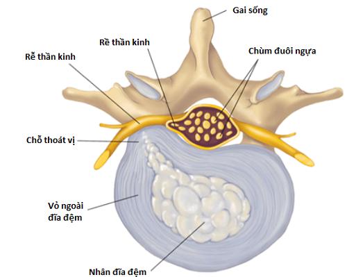 Hội chứng chùm đuôi ngựa xảy ra chủ yếu do thoát vị đĩa đệm