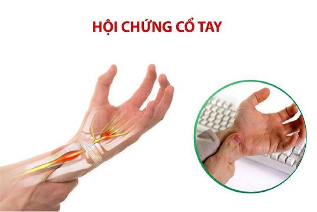 biểu hiện của hội chứng đường hầm cổ tay