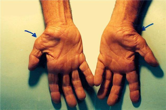 Nguyên nhân gây hội chứng đường hầm cổ tay