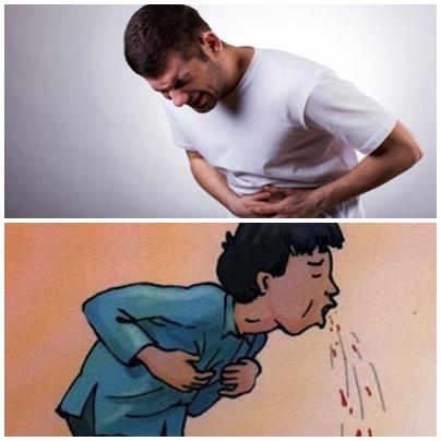 Đau bụng, nôn ra máu, đi ngoài phân đen hoặc có lẫn máu là những triệu chứng điển hình của hội chứng xuất huyết tiêu hóa dưới.