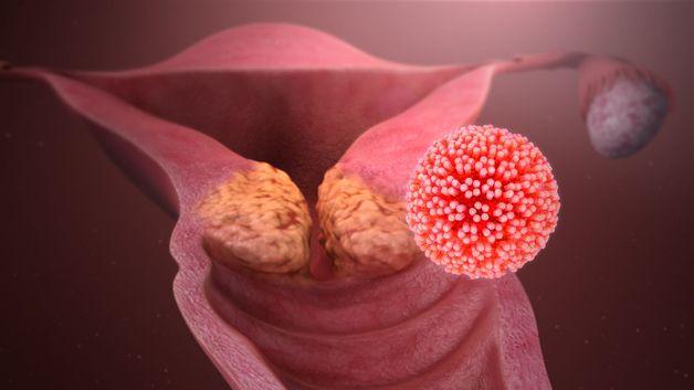 trả lời tầm soát ung thư cổ tử cung bao lâu có kết quả