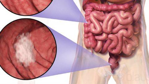 K trực tràng thấp là gì? Nguyên nhân, triệu chứng và điều trị