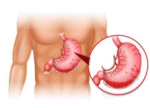 Xuất huyết tiêu hóa là một cấp cứu nội và ngoại khoa nguy hiểm. Bệnh có thể gây tử vong cho người bệnh nếu như không được can thiệp y tế kịp thời và đúng cách.