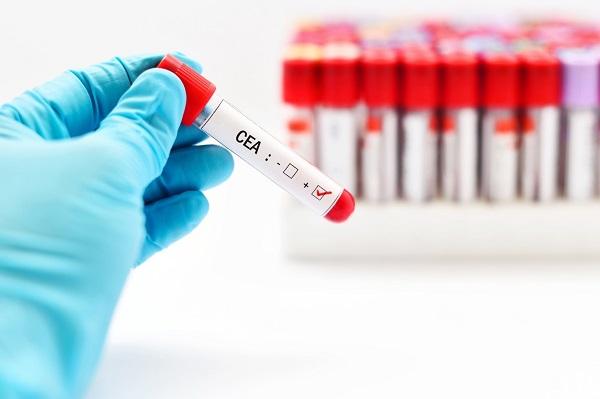 Xét nghiệm máu có những giá trị nhất định trong khám chẩn đoán ung thư