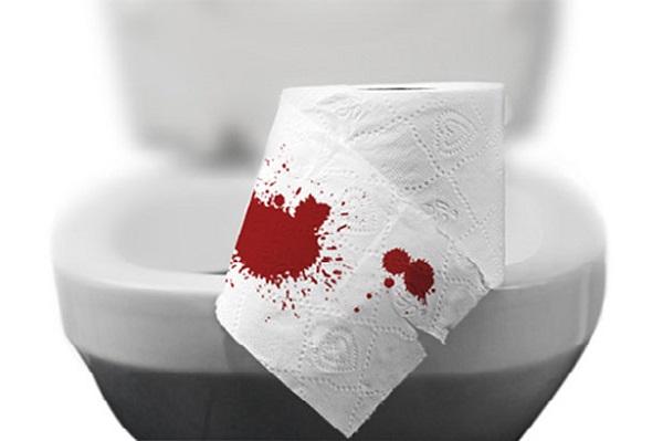Đi ngoài phân có máu là một trong những triệu chứng điển hình ở bệnh nhân ung thư trực tràng